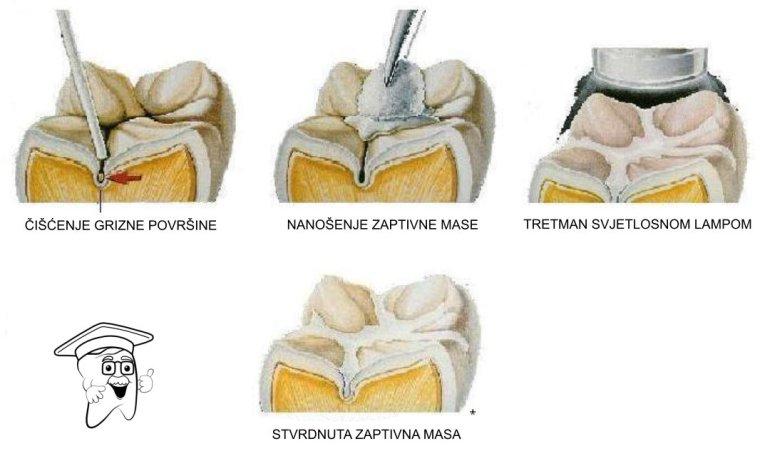 fisura zuba
