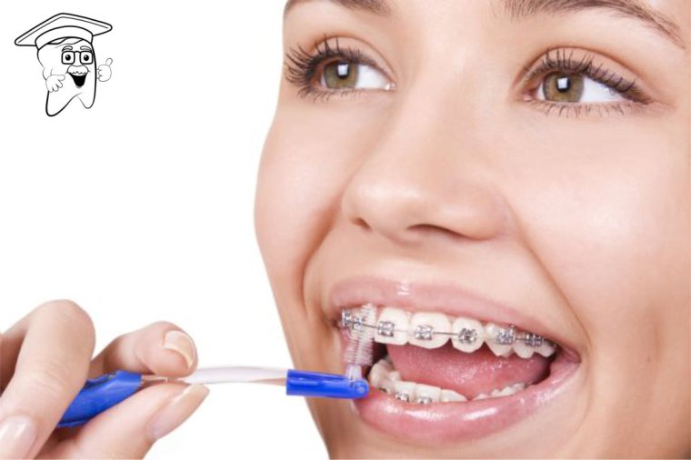 higijena fiksnih aparatića1