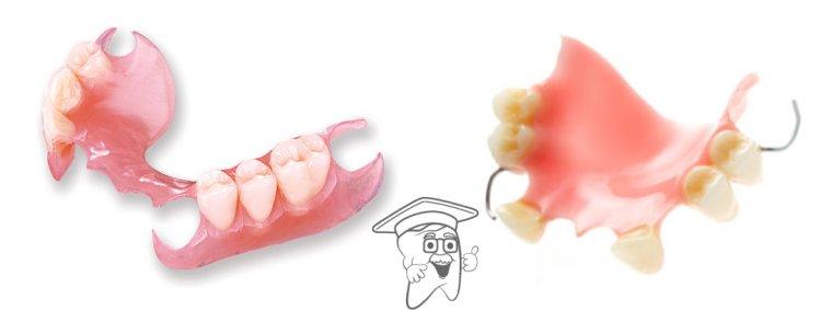 parcijalna akrilatna proteza