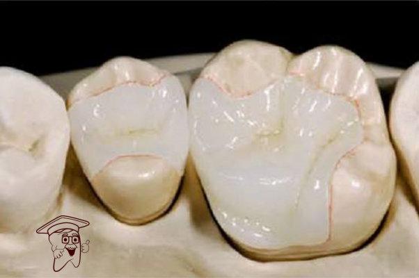 porcelain_inlay_and_onlay.22974155_std