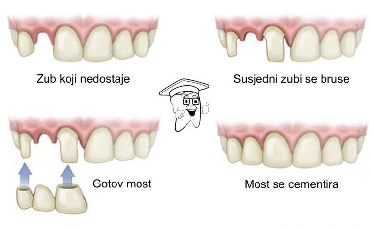 zubni most1