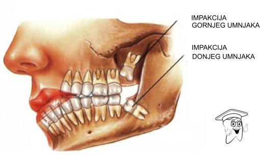 ekstrakcija zuba1