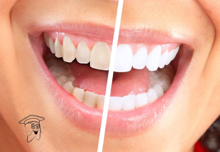 izbjeljivanje zuba1